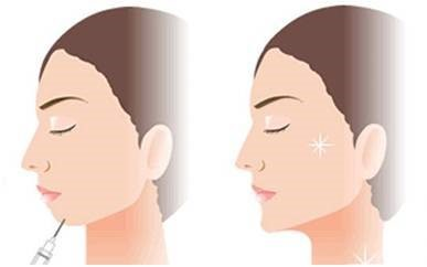 The most common application for HA is with cosmetic procedures such as the elimination of skin defects and wrinkles.